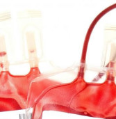 Danno da emotrasfusione con sangue infetto  e decorrenza del termine di prescrizione